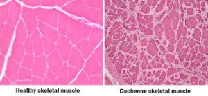 muscle image